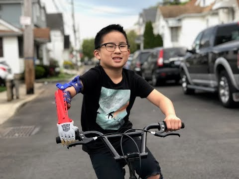 3D technology gives little boy a new arm on Staten Island