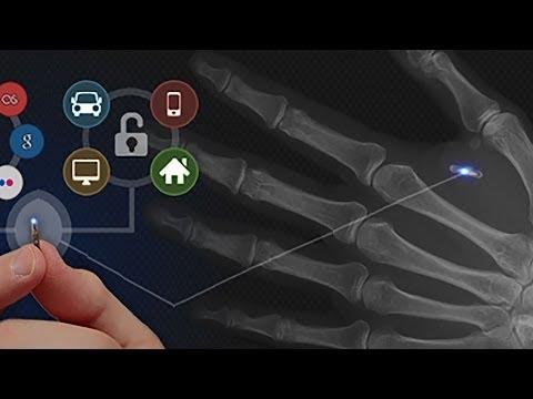 RFID/NFC implant procedure: NTAG216 / Dangerous Things xNT
