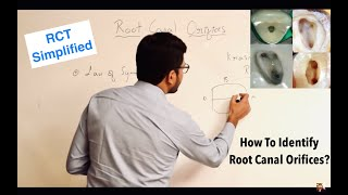 Root Canal Orifices Location - Laws