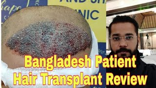 Bangladeshi Patient Honest Hair Transplant Review || Best Hair Transplant 2019