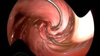 Basit Kapalı Miyomektomi Ameliyatı