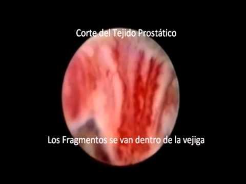 resección endoscópica bipolar de la próstata turpi