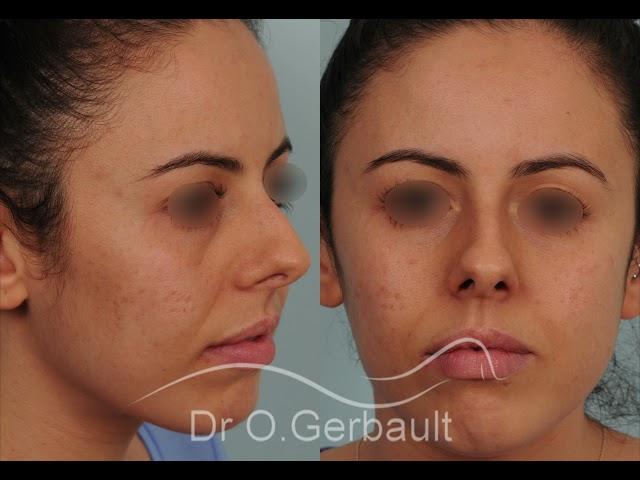 Septoplastie et rhinoplastie sur nez trop court, pointe ronde, légère bosse et déviation septale