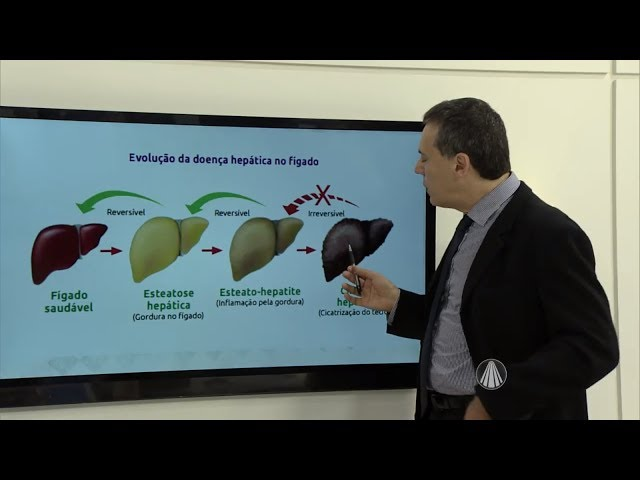 Inimigos do Fígado - Dr Tércio Genzini