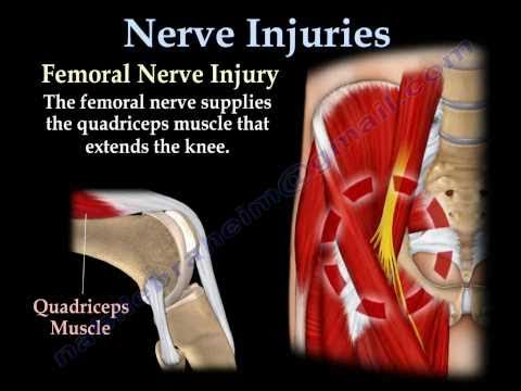 recovery from femoral nerve injury and quadriceps atrophy- arizona, Muscles
