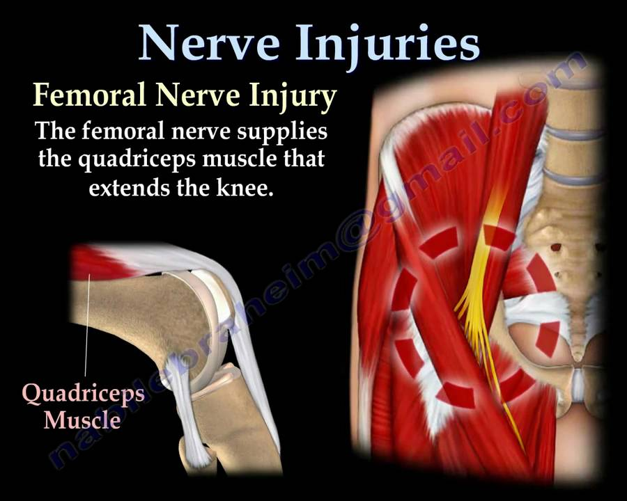 nerve injuries,injury - everything you need to know - dr. nabil, Muscles
