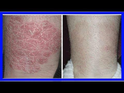 「牛皮癬」怎麼救?「10種天然療法」對癥下藥:加速皮膚癒合,平衡免疫力,重回「不痛不癢」的人生! - YouTube