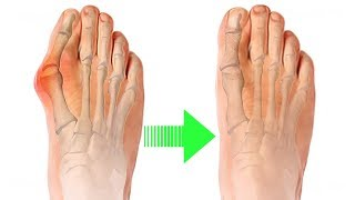 9 Ways to Ease Your Bunions Without Surgery! Cure Your Bunions with 9 Natural Techniques