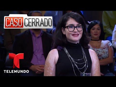 Caso Cerrado | Fired Because Of Her Skin Condition 😡😾👏  | Telemundo English