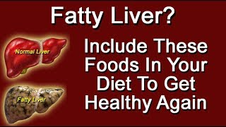 Fatty Liver? Include These Foods In Your Diet To Get Healthy Again