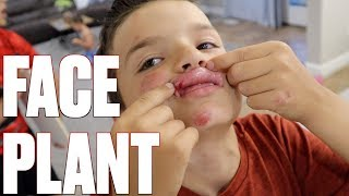 FACE PLANT ON BMX BIKE | FALLING FACE FIRST ONTO THE PAVEMENT | COULD HAVE BEEN WORSE!