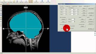 BrainVoyager QX - tutorial1 - brainpeeling.avi
