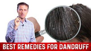 Best Remedies for Dandruff
