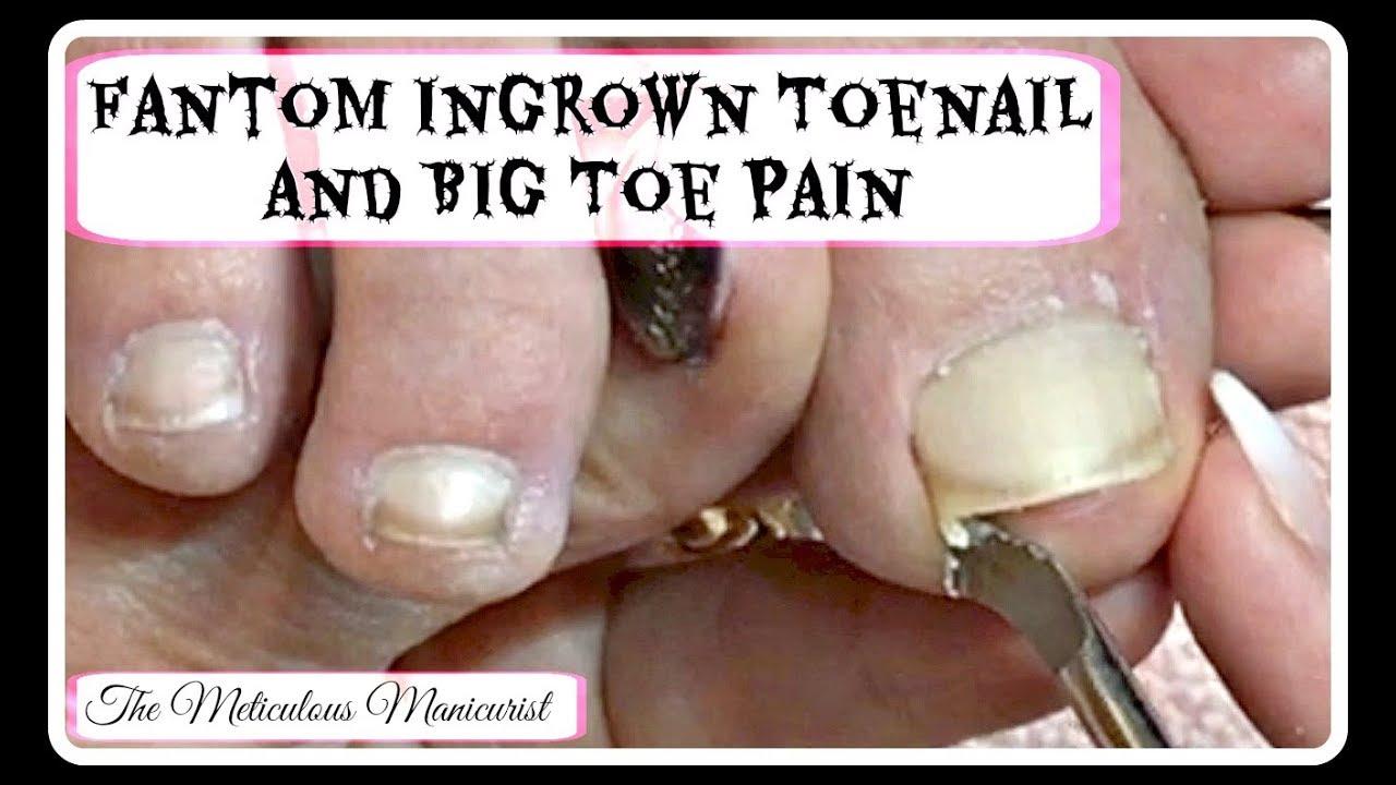 👣Ingrown Toenail Big Toe Pain Remedy Pedicure Tutorial 👣