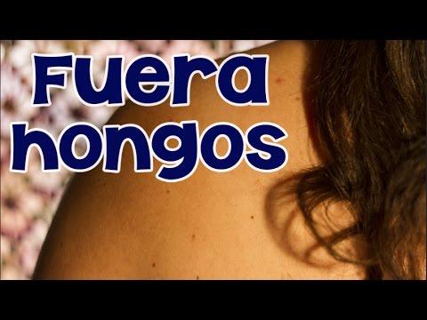 Remedios caseros para eliminar hongos en la piel innatia com youtube - Eliminar hongos de la pared ...