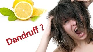 How to Remove Dandruff by Lemon || DIY
