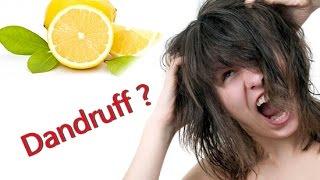 How to Remove Dandruff by Lemon    DIY