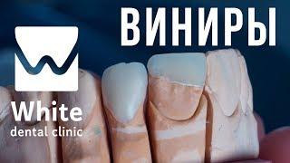 Виниры в Самаре. Подбор виниров. Рекомендациии от стоматологической клиники - White Dental Clinic.(, 2018-02-12T12:11:34.000Z)