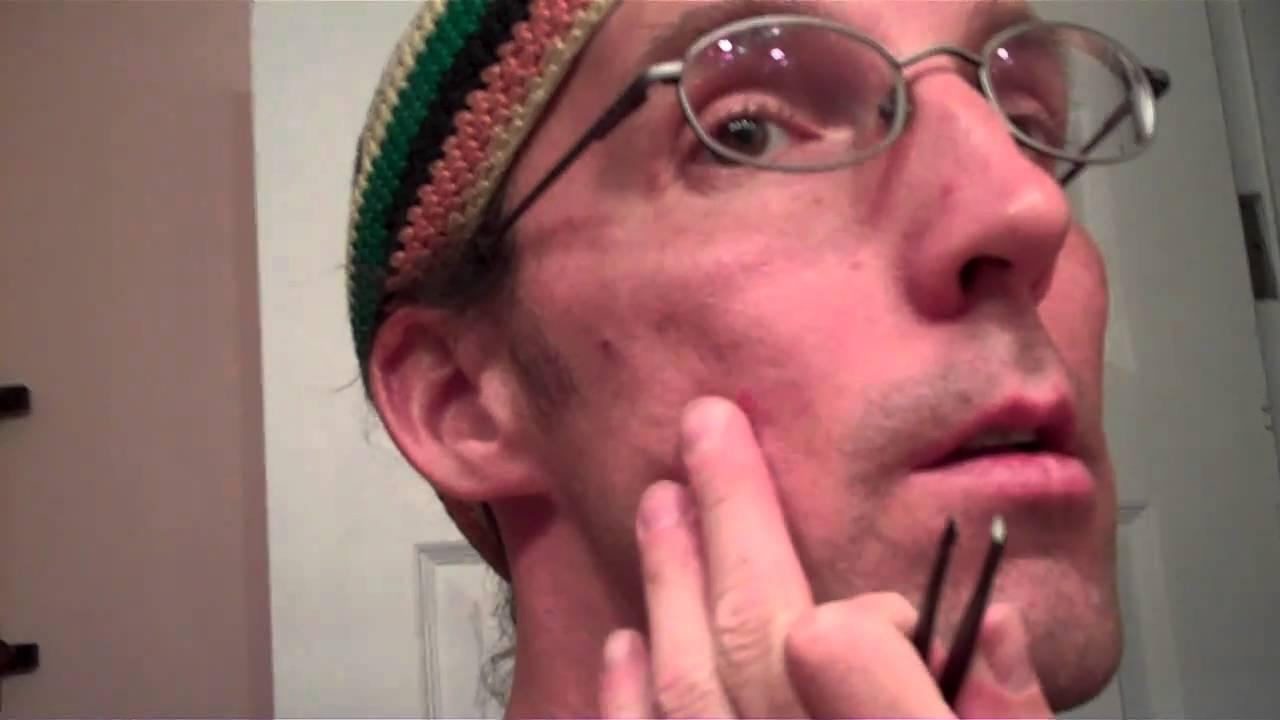 Chin Hair Removal: Waxing Versus Tweezing