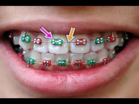 Zahnspange rausbekommen