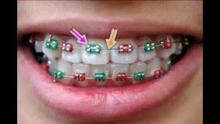Die Entfernung der Zahnspange geschieht schmerzlos
