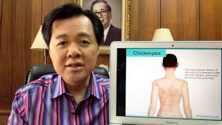 Chicken Pox o Bulutong Tubig - Payo ni Dr Willie Ong #100
