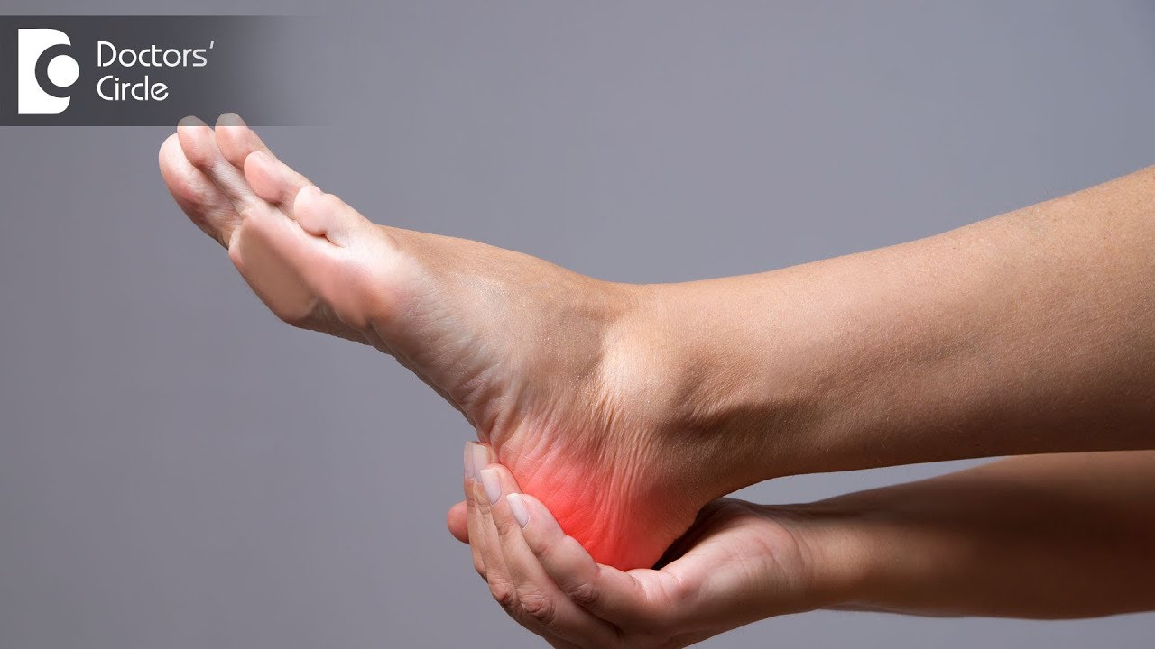Causes Of Morning Heel Pain And Its Management