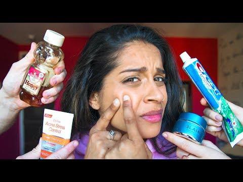 The Struggles of Having Acne
