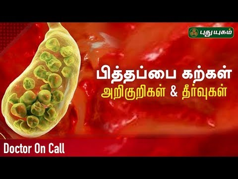 #DoctorOnCall #பித்தப்பைகற்கள் #Gallstones #gallbladderstone #KidneyStone  Live show (Call 044 4596 9444) There will be two sections in which one famous doctor will participate on each section, Viewers will call to this show for their health-related issues, doctors will interact with callers and try to solve their issues.  SUBSCRIBE US |  http://bit.ly/1KcnRTs  Click Here to Watch More |   Natchathira Jannal | https://www.youtube.com/playlist?list=PLjzd-wUqnJvSauRqGkzNfE1kCxfdJKSu2  Rusikkalam Vanga | https://www.youtube.com/playlist?list=PLjzd-wUqnJvQjzEMPZ0uYKAbyABeQ8aBj  Alayangal Arputhangal | https://www.youtube.com/playlist?list=PLjzd-wUqnJvT3rvEgviW9OO7u-zYFWEoJ  Anmeega Thagaval | https://www.youtube.com/playlist?list=PLjzd-wUqnJvSdEkm7nF9Bk5mc8FL-eghJ  First Frame | https://www.youtube.com/playlist?list=PLjzd-wUqnJvT1Wq_IBKBqerjrQxkZR1MU    Connect With Us:  http://www.puthuyugam.tv/  https://www.facebook.com/Puthuyugamtv  https://twitter.com/PuthuyugamGec