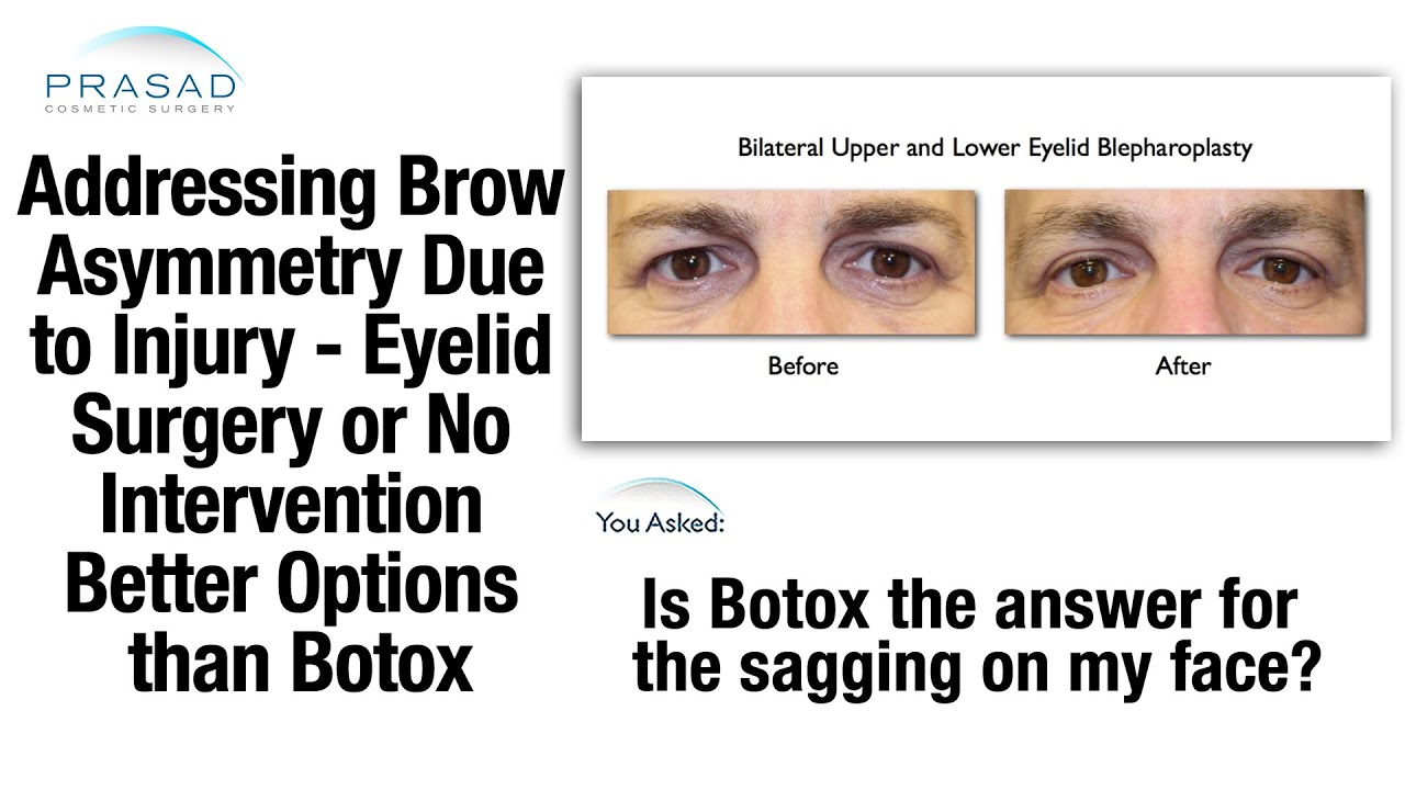 Botox For Brow Asymmetry Better Options Available Or No Treatment
