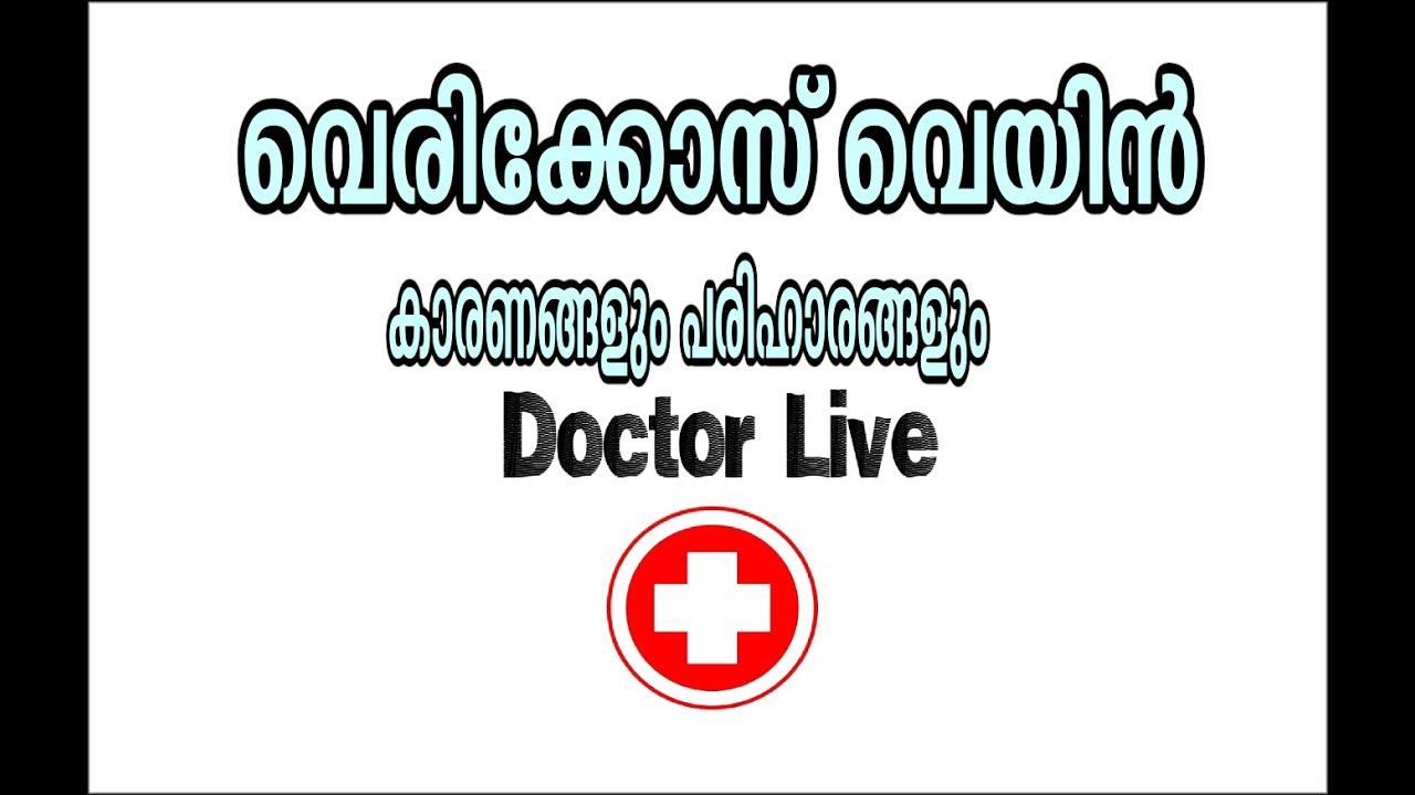 varicose video sănătate live)