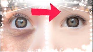 Remove Dark Circles In Minutes! thumbnail