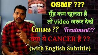 मुँह कम खुलने के कारण और इलाज   Oral submucous fibrosis Causes and Treatment
