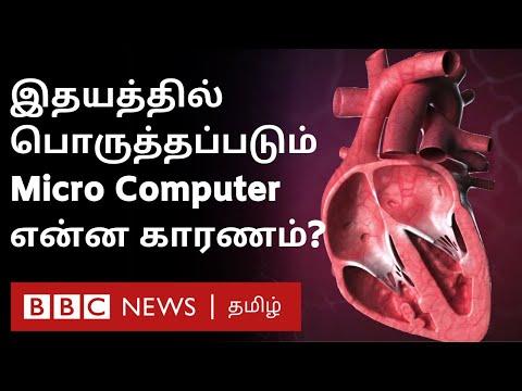 Heart Failure ஐ தடுக்கும் குட்டி Device: ஆச்சர்யமூட்டும் கண்டுபிடிப்பு | BBC Click Tamil EP-82|