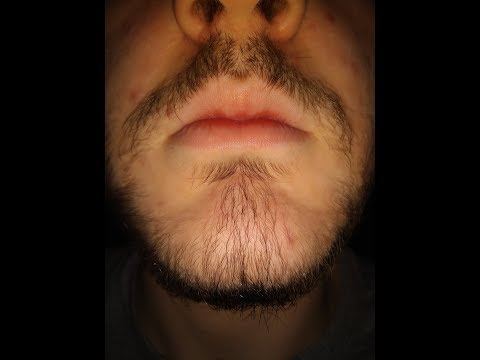 5% Minoxidil Beard Journey Before and After (28 Weeks)
