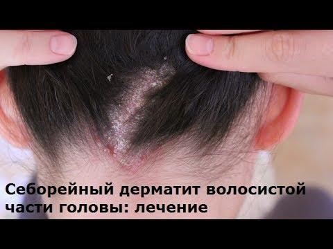Аллергический ринит: лечение, симптомы, лекарства