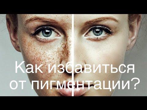 Пигментные пятна на лице: как избавиться, причины