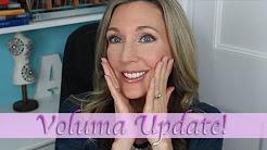 Voluma Cheek Filler | 1 Year Update!