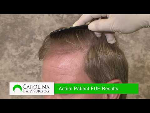 FUE vs FUT Graft Survival in Hair Transplant Surgery