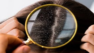 How To Get Rid of Dandruff: 3 Homemade Treatments