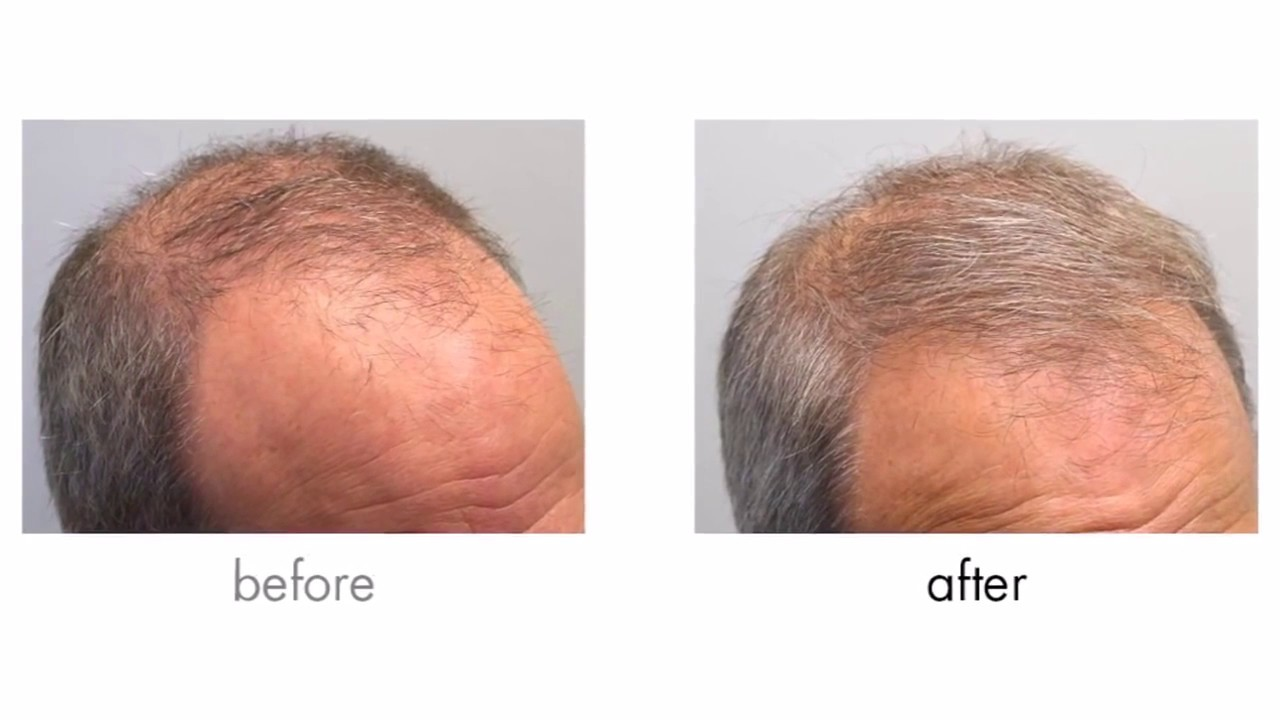 Propecia not working after 4 months.doc - Mens Hair Loss Treatment Finasteride Propecia Minoxidil Rogaine Before And After