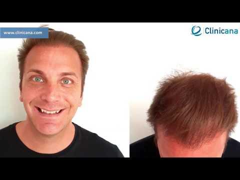 Дэниел из Швеции рассказывает о клинике по пересадке волос Clinicana, отзыв клиента о Clinicana