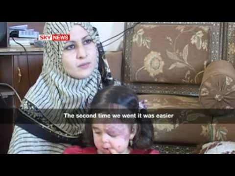 Deformed babies in Fallujah Iraq reported by skynews