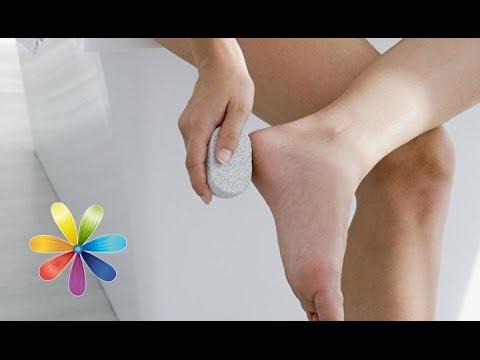 Трещины на коже рук, пальцев, пяток - причины и лечение