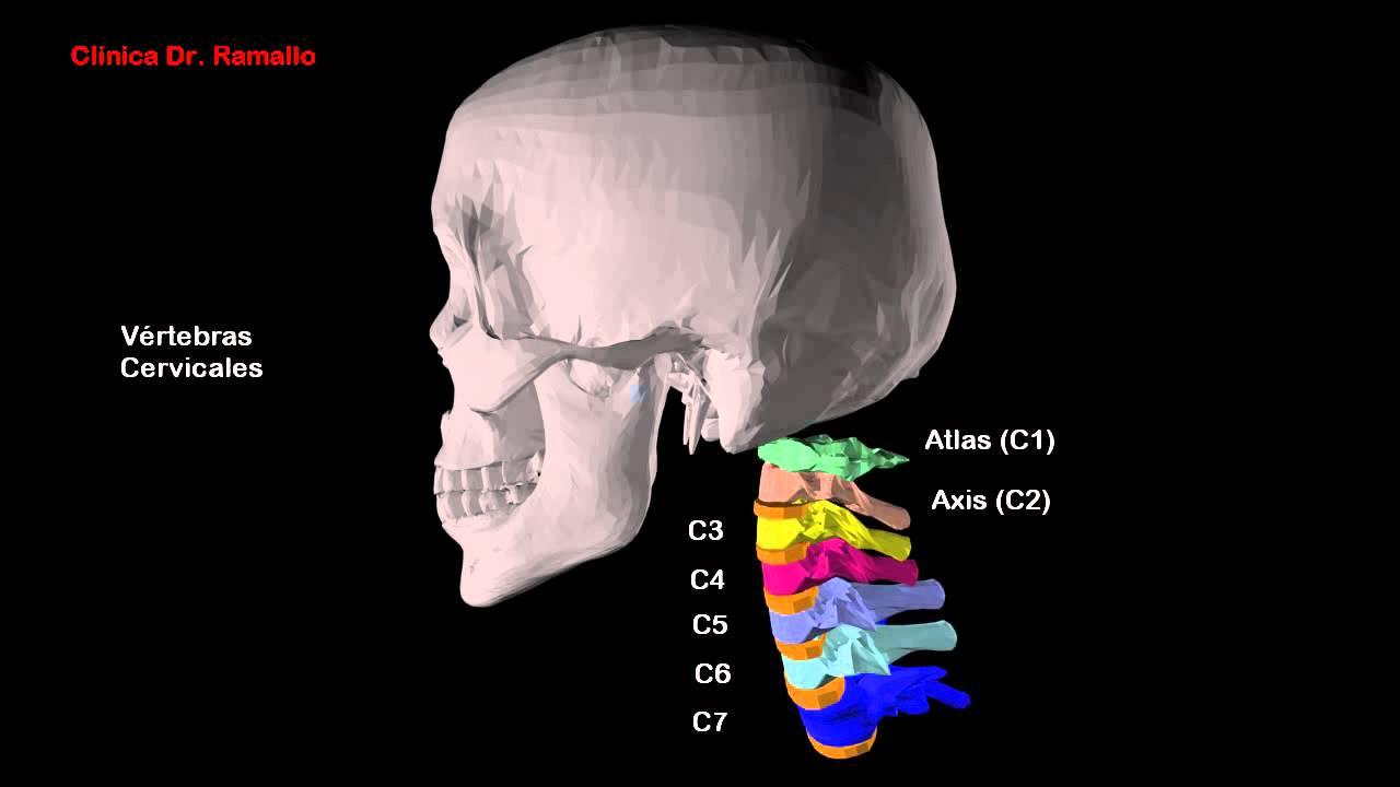 Recreacion en 3D de la columna cervical y radiografía (Rx) de ...