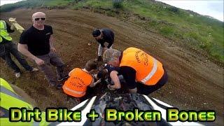 Huge Dirt Bike Crash + Crazy Broken Bones Compilation 2015