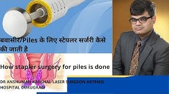 Piles बवासीर treatment by Latest painless Stapler Surgery -10 min in HD