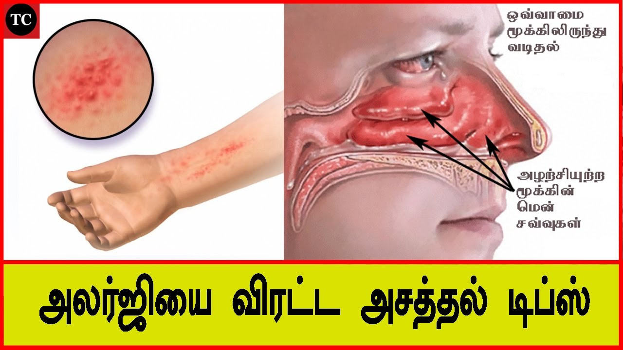 Tips for allergy dispel stunning | Treating Skin Allergies at Home in Tamil  | Tamil Channel