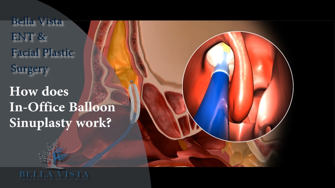 How to Prepare for Balloon Sinuplasty Surgery