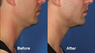 Treat double chin with Kybella injections without surgery in NYC